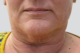 Neck Lift Before.png