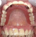 denture-ex2-2-min.png