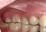 denture-ex1-2-min.png