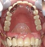denture-ex2-1-min.png