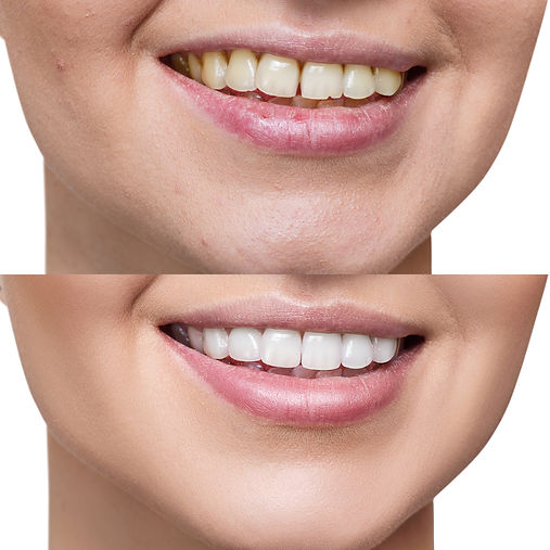 Teeth of young woman before and after wh