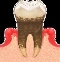 歯周病03