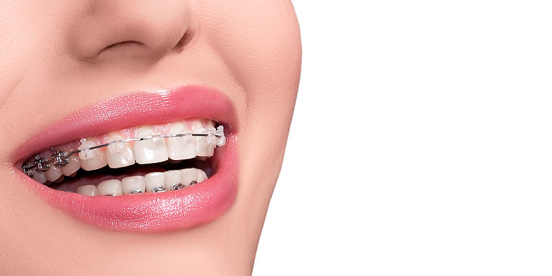 Braces on Teeth. Dental Braces Smile. Or