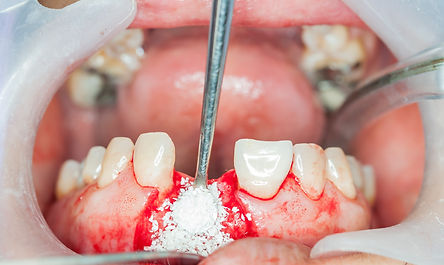 Dental implants surgery in real patient_