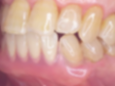 smiledenture02.png
