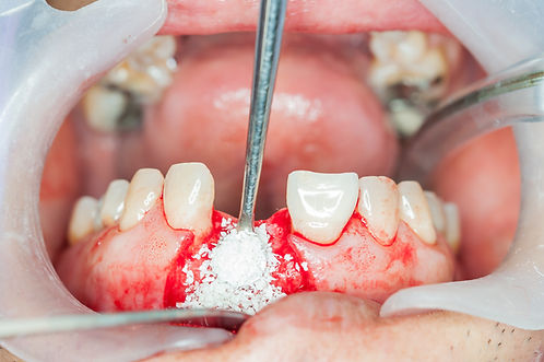 Dental implants surgery in real patient.