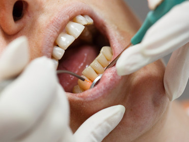 Dental laser used on a patient on soft a