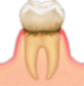 歯周病01