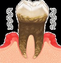 歯周病04