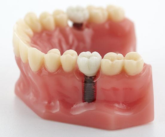 Close up of a Dental implant model..jpg