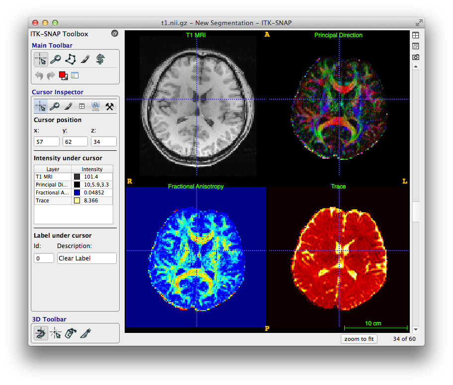 A snapshot of the ITK-SNAP Toolbox with four brain images shown corresponding to different types of brain scans