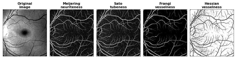 Image of a human retina before and after filtering with Meijering, Sato, Frangi and Hessian filters