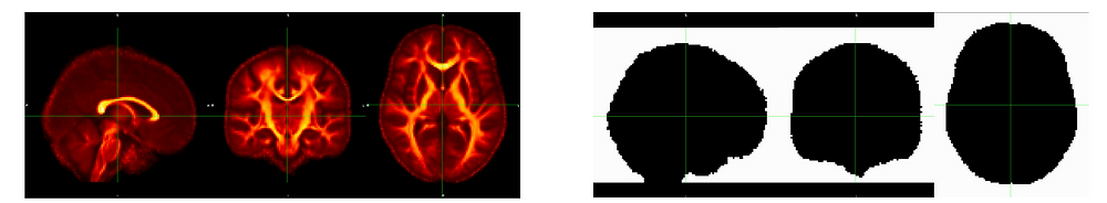 Brain map from three orthogonal angles colored red and orange on right, on the left Brain silhouette from three orthogonal angles with surrounding space colored white