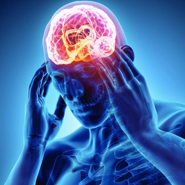 Concussion mTBI (1)