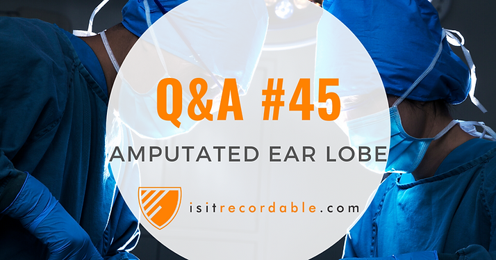 Amputated Ear Lobe