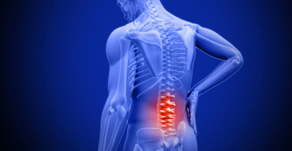 Can Poor Hip Mobility Increase Low Back Pain