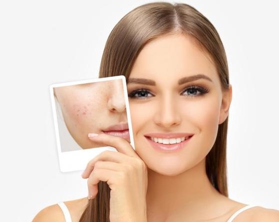Skin Clean Treatment