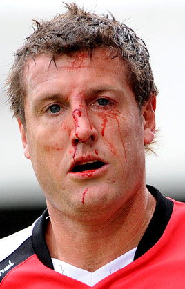 Crawley's Steve Fletcher after a nasty tackle