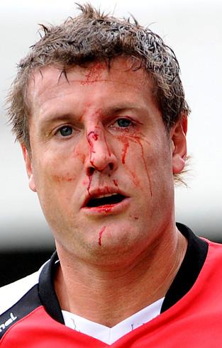 Crawley's Steve Fletcher after a nasty tackle