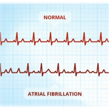 Atrial Fibrillation - North America