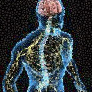 Epilepsy - LATAM