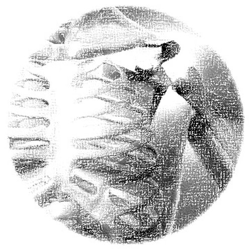 Osteoporosis - LATAM