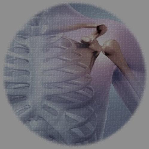 Rheumatoid Arthritis - Europe