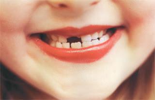missing_tooth_SM.jpg