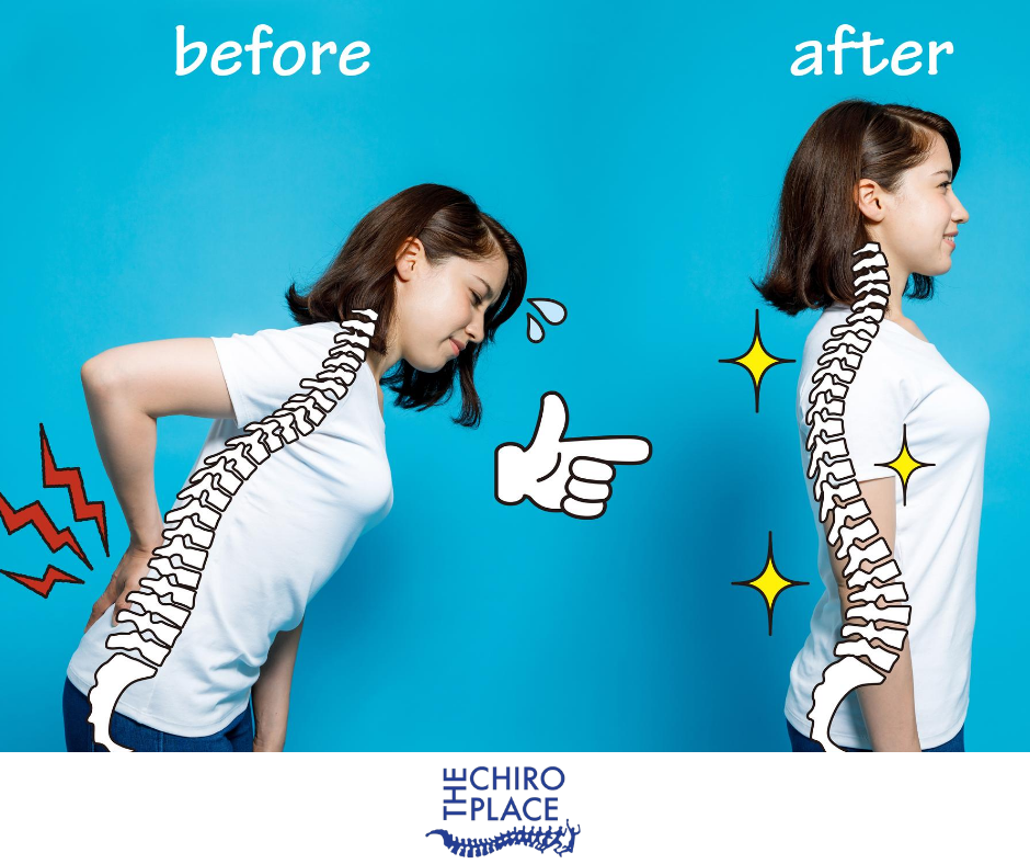 before and after picture of girl with back pain because of bad posture and the smiling because of good posture