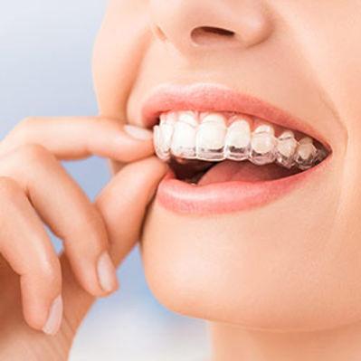 ortodonzia-apparecchio-invisibile.jpg
