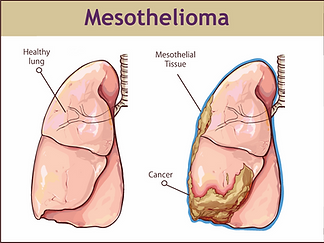 Mesothelioma.png