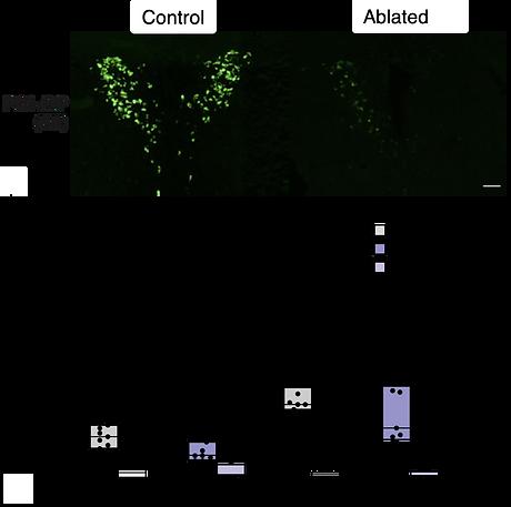 PVN AVP cell deletion images.png