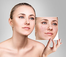 Woman shows photo with bad skin before t