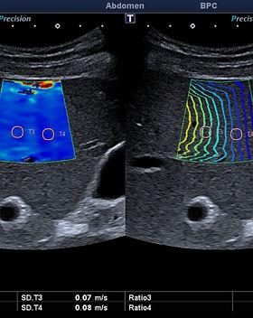 LE-Investigation-liver-fib-image-min.jpg