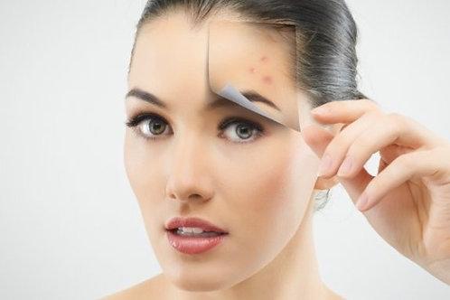 Tratamiento para acné y piel grasa x 5 ($280.000 COP)