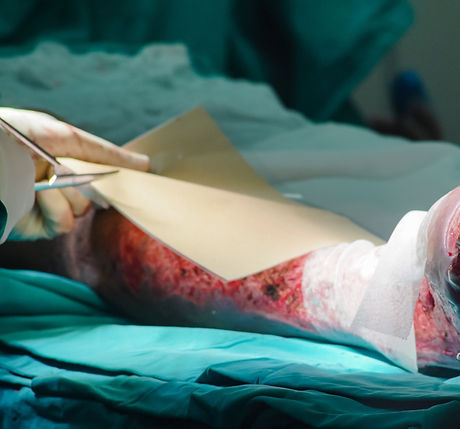 Surgeons team working with burn wound on  leg of patient in operating room._edited.jpg