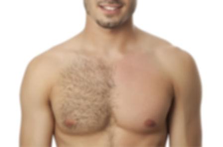 depilação masculina Rio de Janeiro