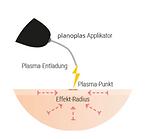 Plasmapen-planoplas.png