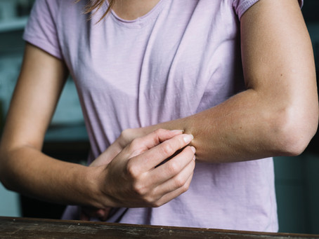 Your guide to dealing with Eczema