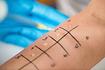 Skin Prick Tests