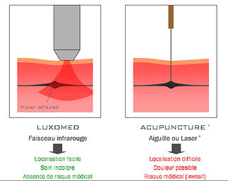 faisceau infrarouge luxopuncture