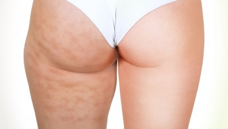 Why you need to treat your cellulite whilst you lose weight- not before or after