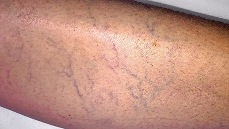 Professional hair removal for varicose and spider veins