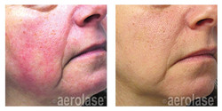 NeoSkin Rosacea - After 1 Treatment - Ye