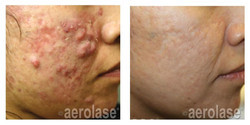 NeoClear Acne - After 5 Treatments - Mic