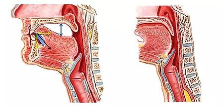 tongue suction1.jpg