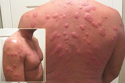 аллергия от клопов