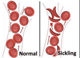 The TeamSafe® Report #16: Sickle Cell Trait