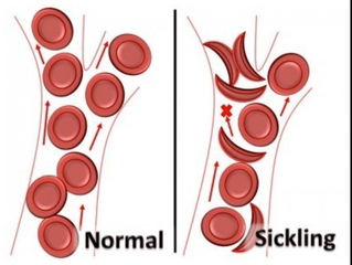 ​The TeamSafe® Report #16: Sickle Cell Trait