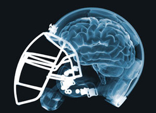 Can football and its players recover from the concussion crisis?